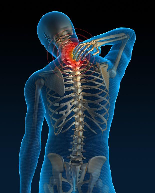 11 maneras de mejorar el dolor de espalda